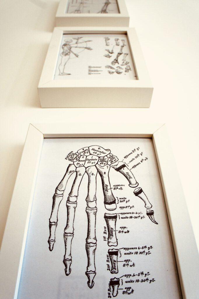 Hand Anatomie in der Ergotherapie Christopher Reichardt Saarbrücken